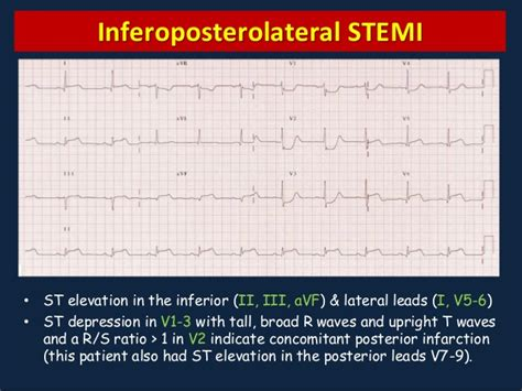 Myocardial Ischemia and Infarction
